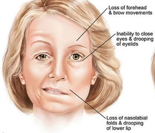 Παράλυση προσωπικού νεύρου