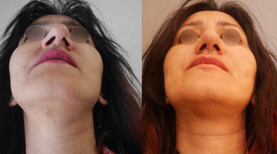 Πλαστική μύτης Θεσσαλονίκης