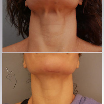 λίφτινκ λαιμού