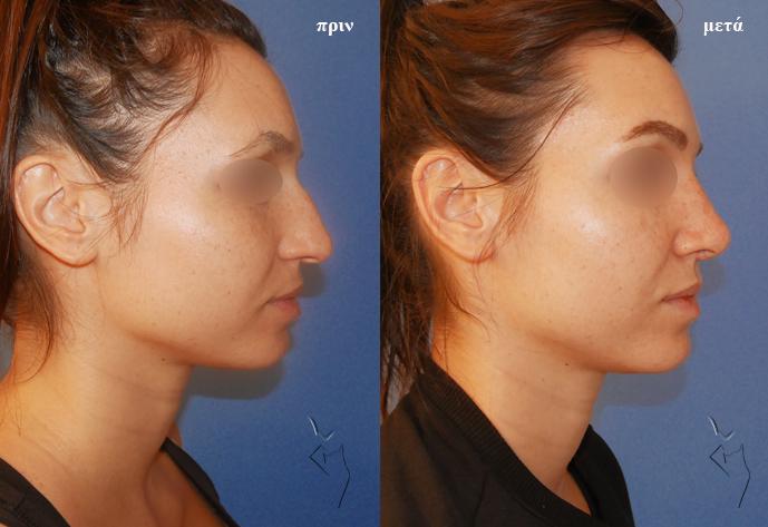 πλαστική μύτης πριν και μετά